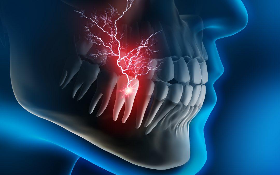 Which Issues Qualify as Dental Emergencies?