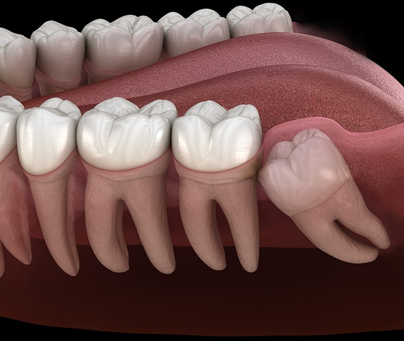 Wisdom Teeth: Purpose, Problems, and Solutions